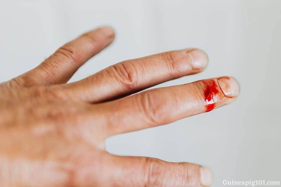 Do guinea pigs bite hurt?